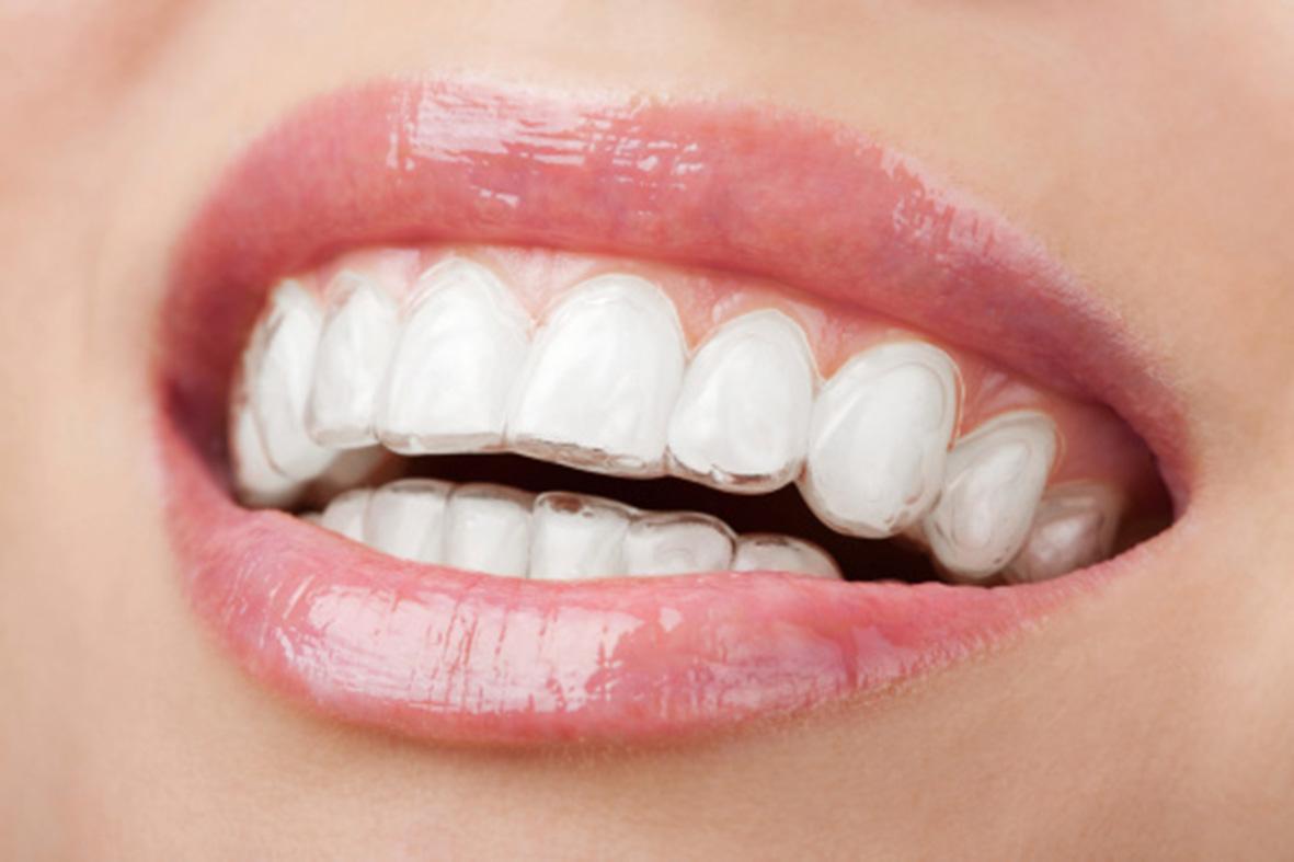 Invisalign / Ortodoncia