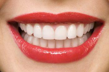 Dental Contour