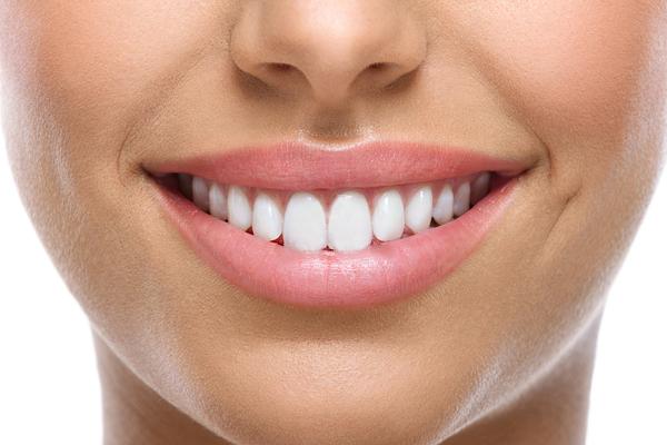 Carillas dentales: consigue una sonrisa perfecta en solo 4 pasos