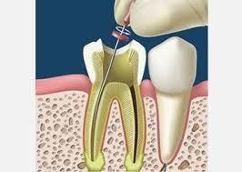 ¿Por qué necesito hacerme un tratamiento de endodoncia si no me duele el diente?