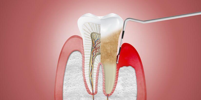 Enfermedad de las encías o enfermedad periodontal: Causas, Síntomas y Tratamientos