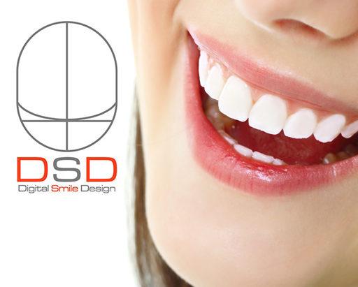Descubre el Diseño de Sonrisa Digital (DSD)